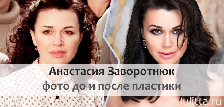 Анастасия заворотнюк до и после пластики фото шварценеггер фильм без компромиссов фильм