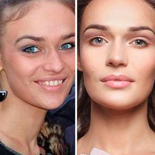 алёна водонаева фото до и после пластики фото