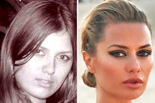 боня фото до и после пластики